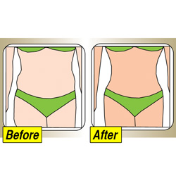Transform Tummy Tuck Belt  Model# BK0033